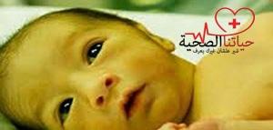 النسبة الطبيعية لليرقان عند حديثي الولادة